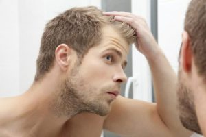 Hair transplant for young men: stop receding hairline!