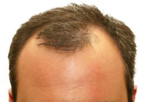 Receding hairline - causes and cure